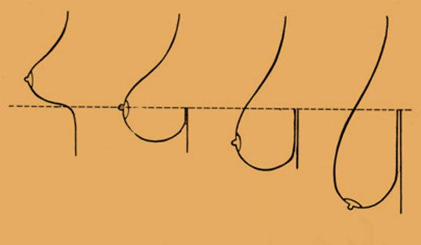 Как подтянуть грудь в домашних условиях - 5 способов подтяжки грудных мышц